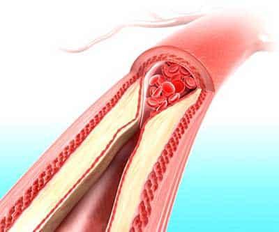 reduzindo o colesterol